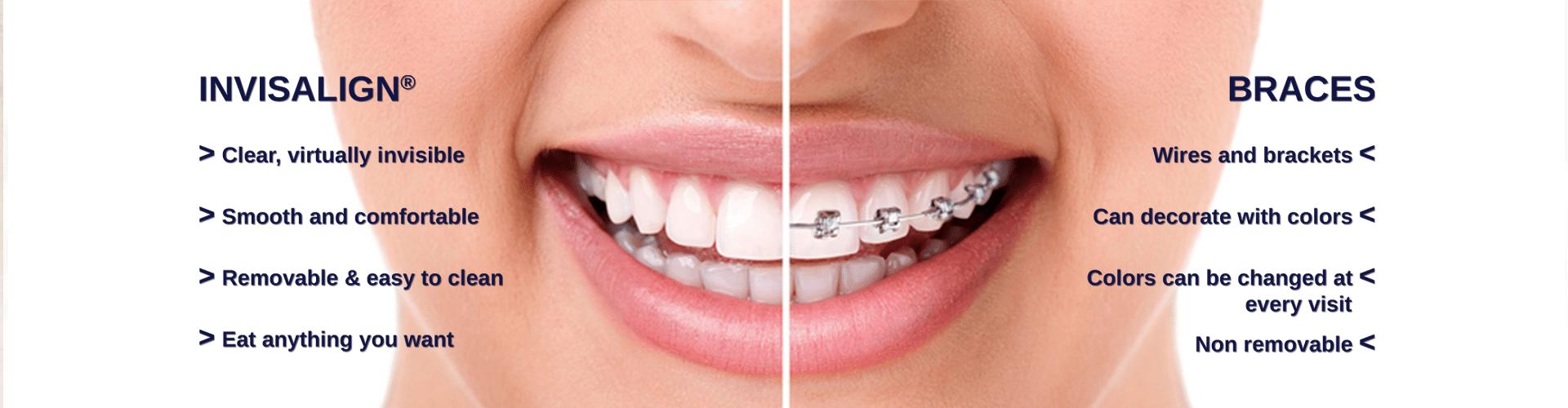 Orthodontist baton rouge la invisalign braces porter orthodontics invisalign slider at porter orthodontics baton rouge la solutioingenieria Images