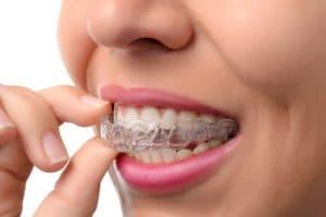 137-Orthodontic-retainers-2-300x200