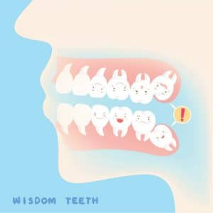 Wisdom Teeth Baton Rouge LA