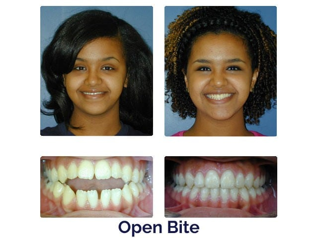 Before and After Porter Orthodontics Baton Rouge LA