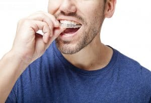 Man putting in clear aligners